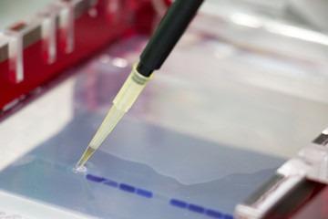 Gel electrophoresis buffer, role of TAE and TBE in agarose gel electrophoresis