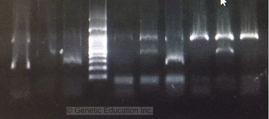 A complete guide for analysing and interpreting gel electrophoresis results