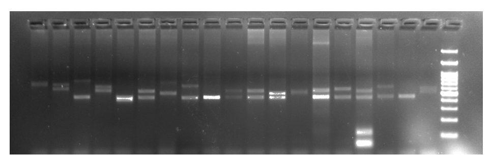 agarose gel electrophoresis results of STR