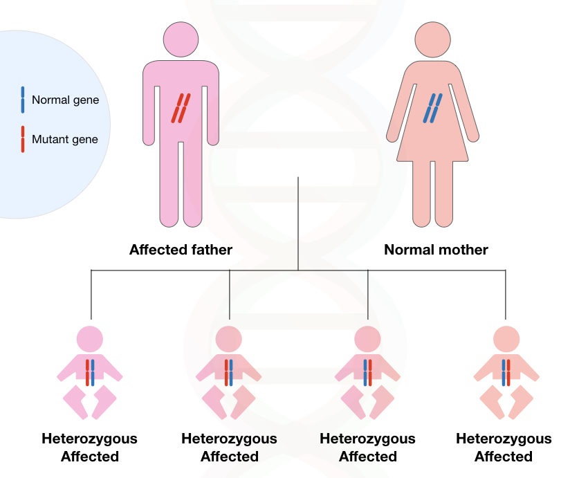 Image 3: graphical illustration of inheritance Huntington's disease.