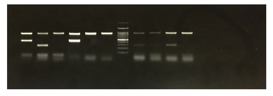 The results of gel electrophoresis of DNA.
