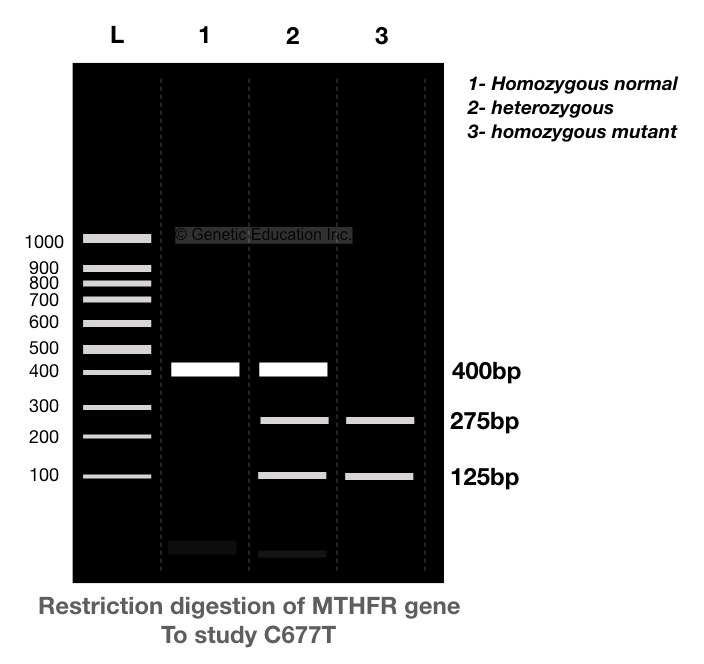 The hypothetical representation of restriction digestion of C677T with the restriction endonuclease.