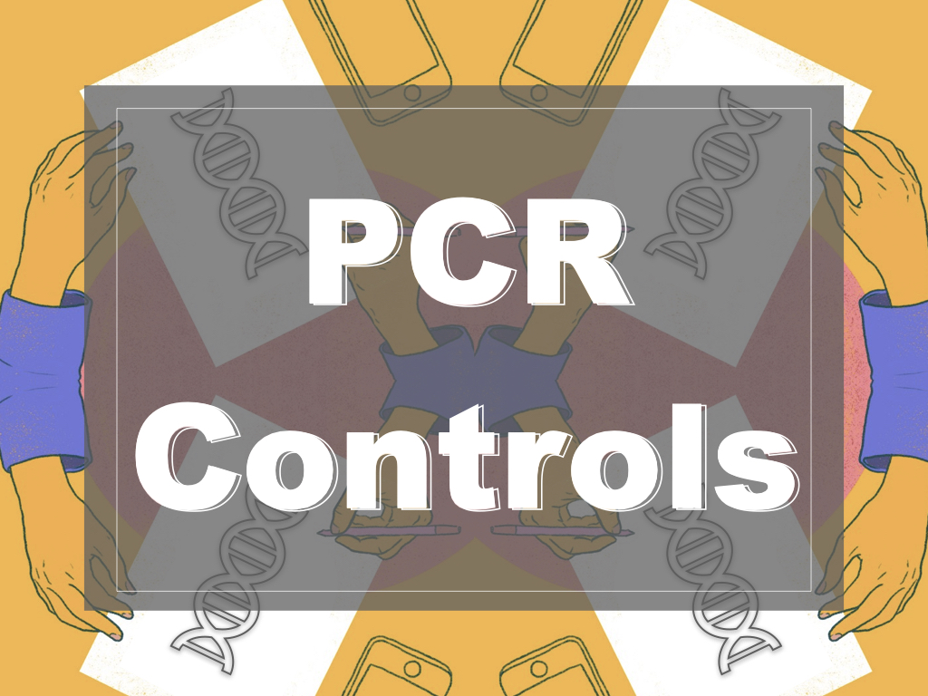 Type of PCR Controls- Negative, Positive and Internal Controls